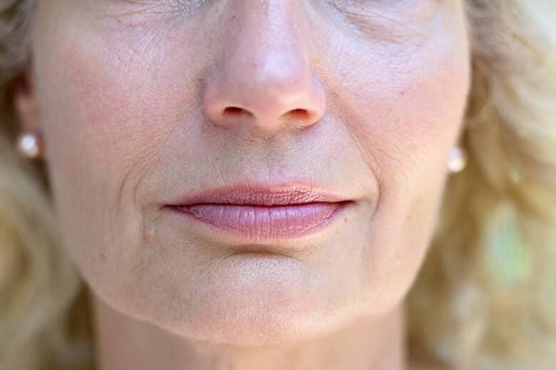 kobieta ze zmarszczkami wokół ust